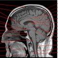 optimización cerebro