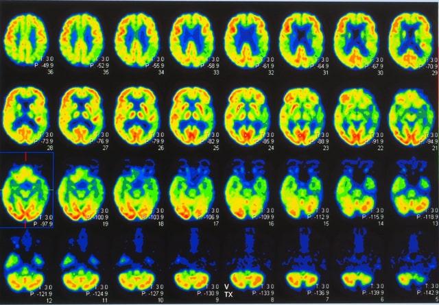 qué sucede cuando tomar una macrodosis de psilocibina por 52 días - experimento